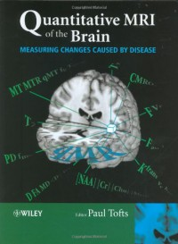 quantitative-mri-of-the-brain-measuring-changes-caused-by-disease