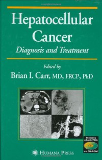 hepatocellular-cancer-diagnosis-and-treatment-current-clinical-oncology