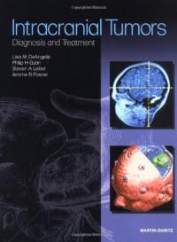 intracranial-tumors-diagnosis-and-treatment