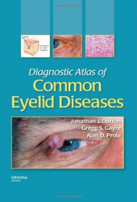 diagnostic-atlas-of-common-eyelid-diseases