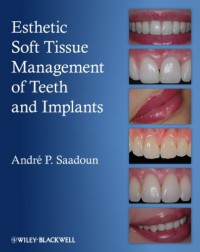 esthetic-soft-tissue-management-of-teeth-and-implants